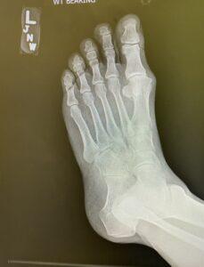 X-Ray Left Foot